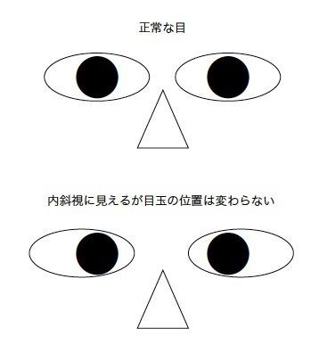 squint.jpg